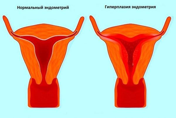 Свечи кровоостанавливающие при маточных кровотечениях 31